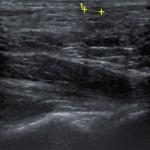 Imagem ecográfica representando xantoma no tendão de Aquiles Imagem cedida pelo Dr. José Durães (Hospital Egas Moniz)